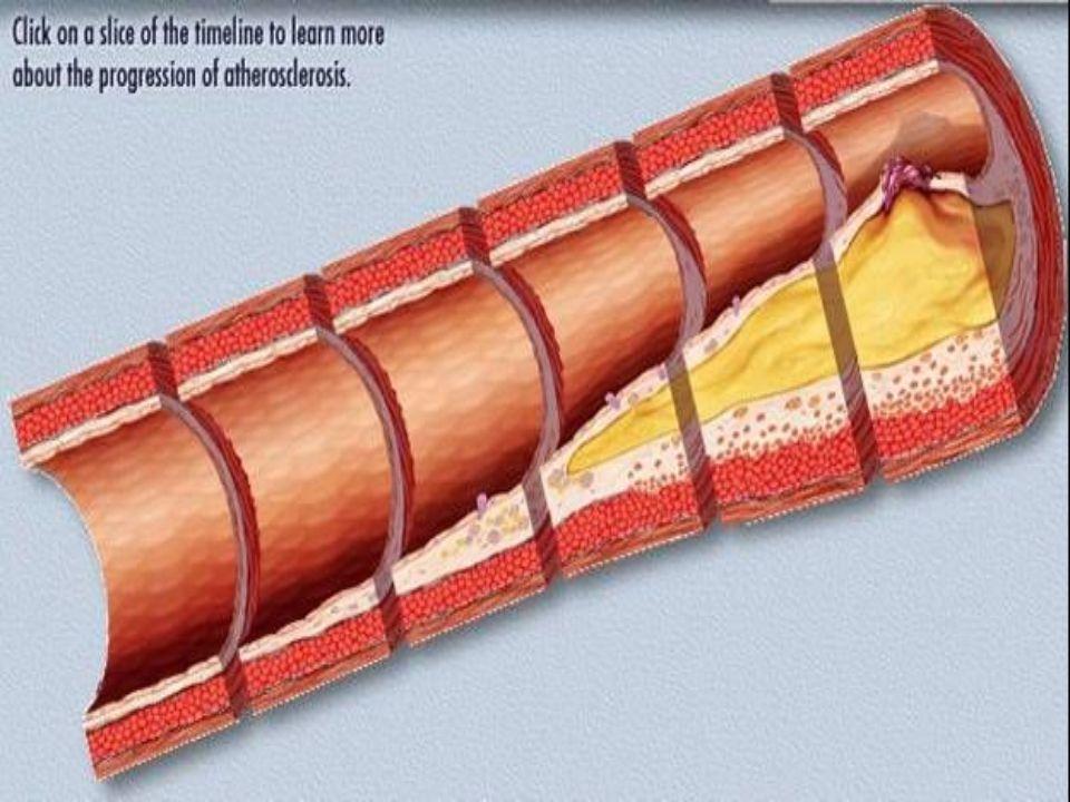 Előzőekben leirt foly. A coronaria lumen beszükülését majd elzáródását eredményezi
