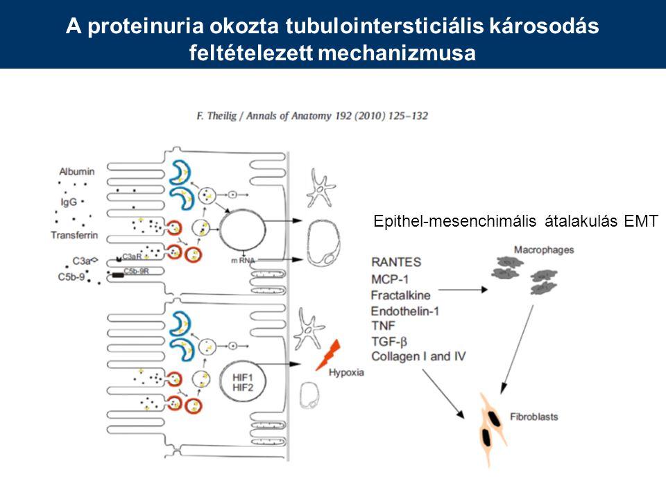 A proteinuria okozta tubulointersticiális károsodás feltételezett mechanizmusa