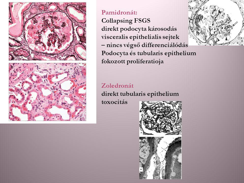 Pamidronát: Collapsing FSGS. direkt podocyta károsodás. visceralis epithelialis sejtek. – nincs végső differenciálódás.