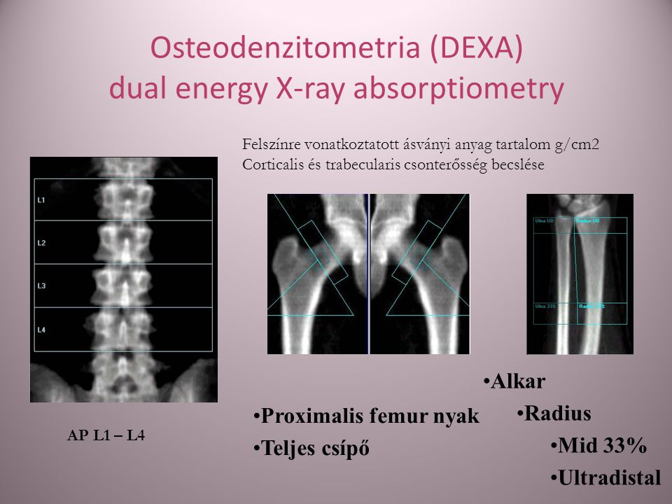 Osteodenzitometria (DEXA) dual energy X-ray absorptiometry
