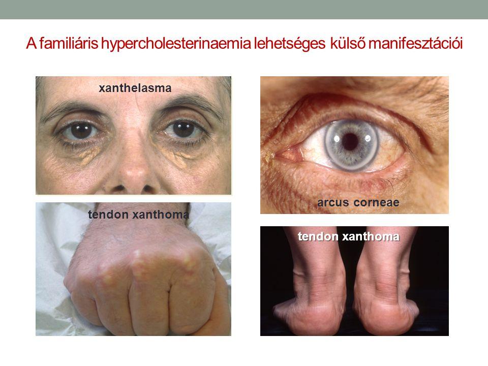 A familiáris hypercholesterinaemia lehetséges külső manifesztációi