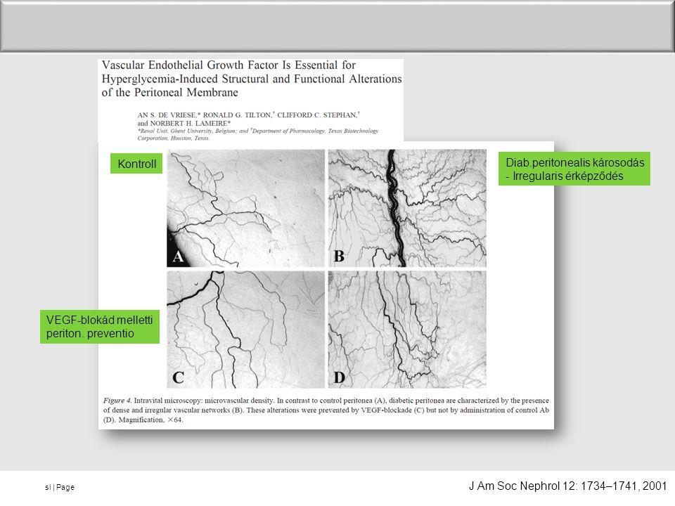 Kontroll Diab.peritonealis károsodás. - Irregularis érképződés. VEGF-blokád melletti. periton. preventio.