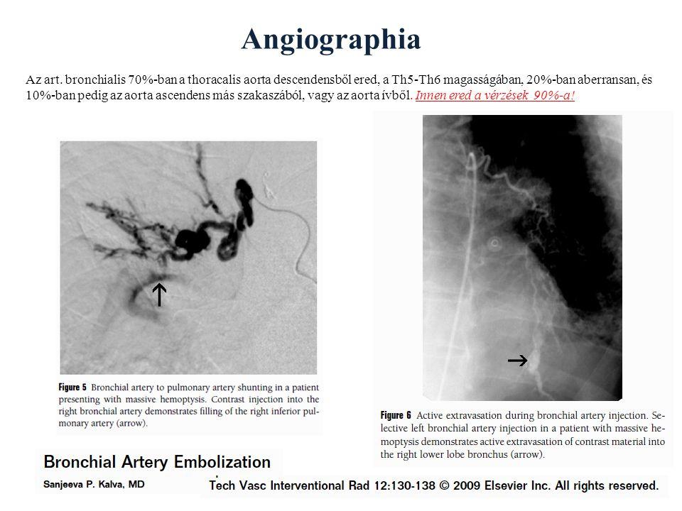 Angiographia