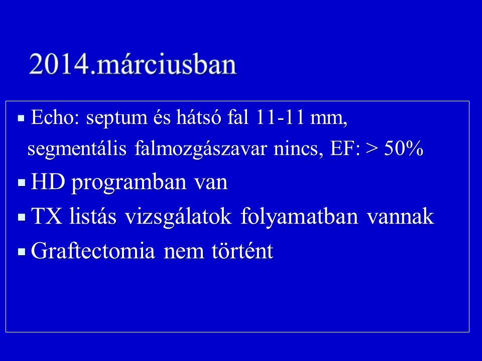 2014.márciusban HD programban van