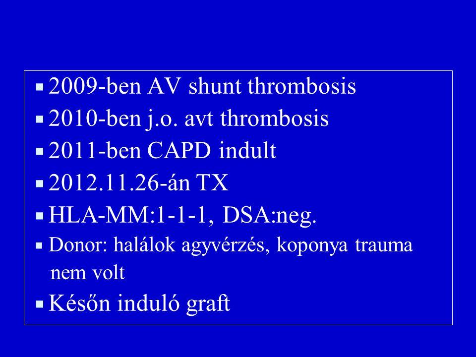 2009-ben AV shunt thrombosis 2010-ben j.o. avt thrombosis