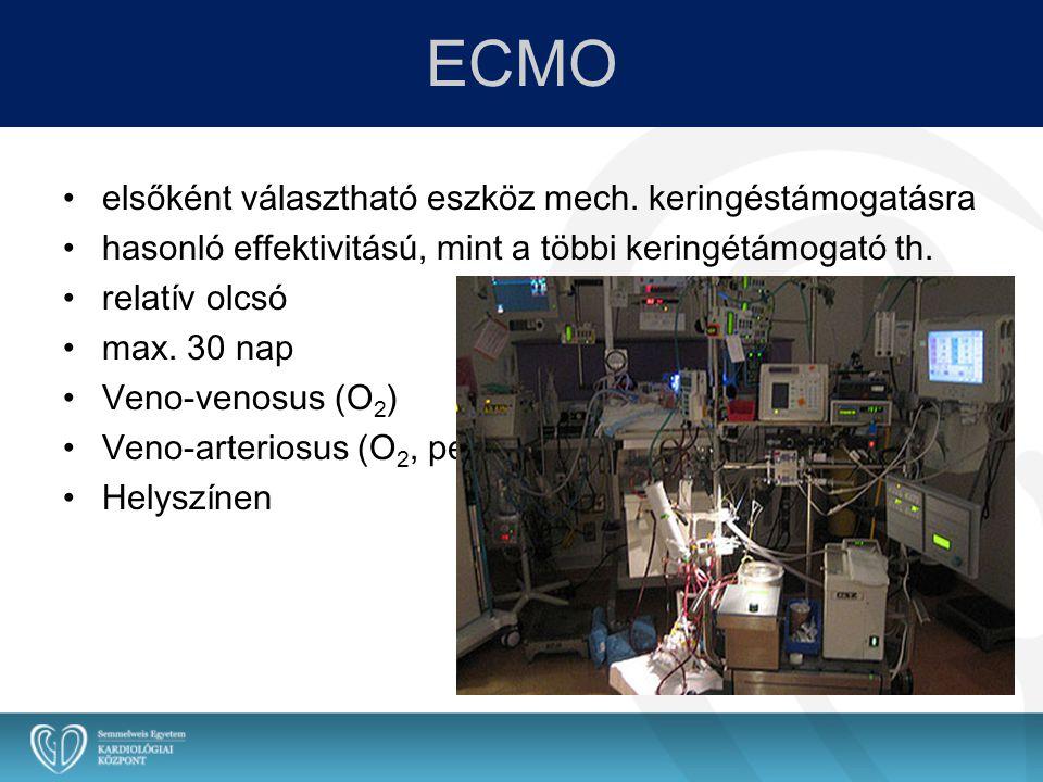 ECMO elsőként választható eszköz mech. keringéstámogatásra