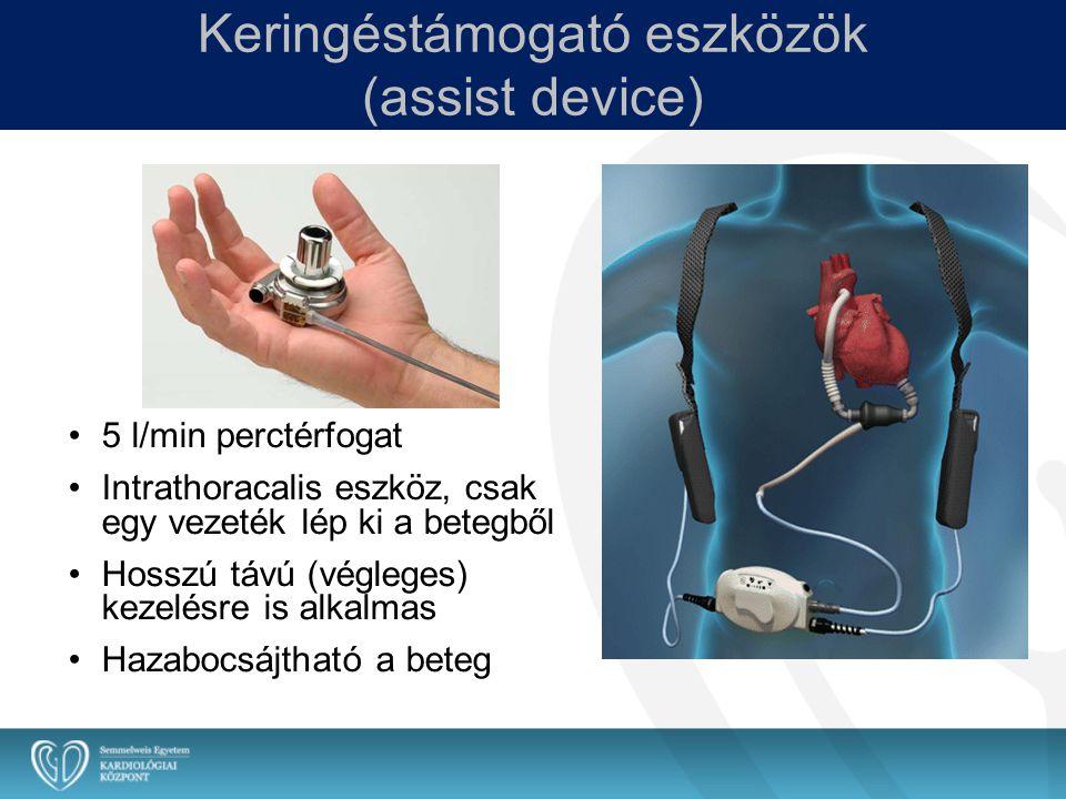 Keringéstámogató eszközök (assist device)
