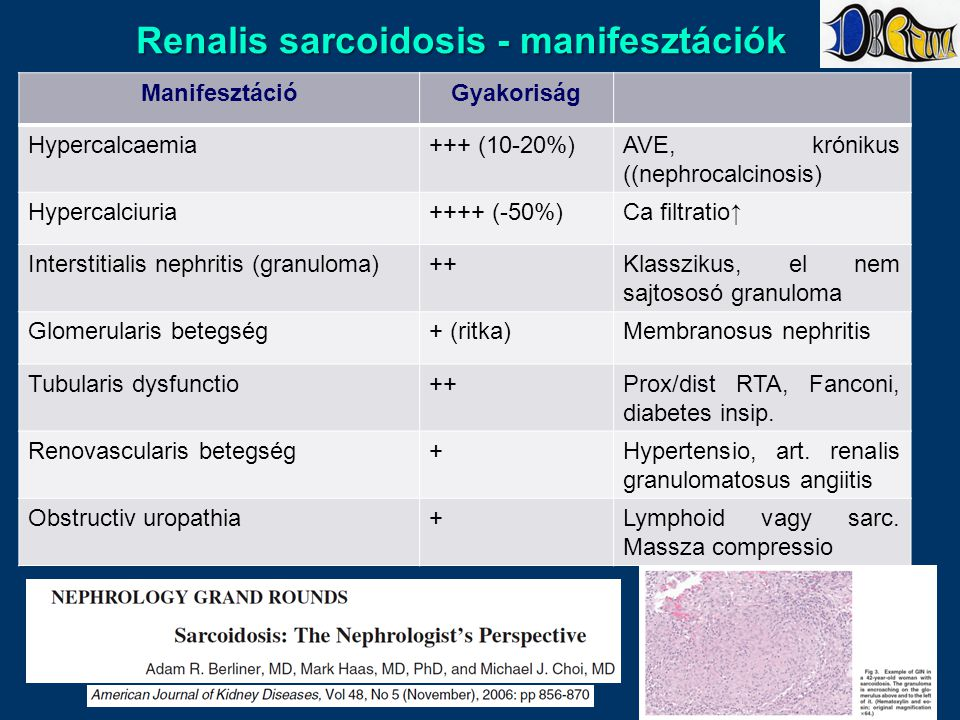 Renalis sarcoidosis - manifesztációk