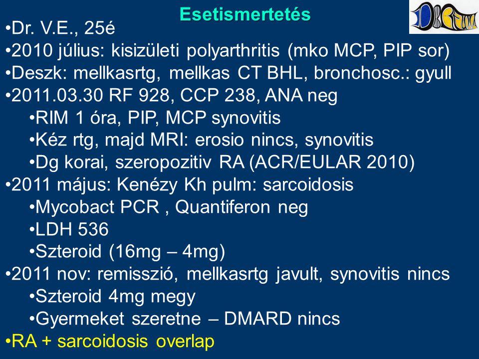 Esetismertetés Dr. V.E., 25é. 2010 július: kisizületi polyarthritis (mko MCP, PIP sor) Deszk: mellkasrtg, mellkas CT BHL, bronchosc.: gyull.