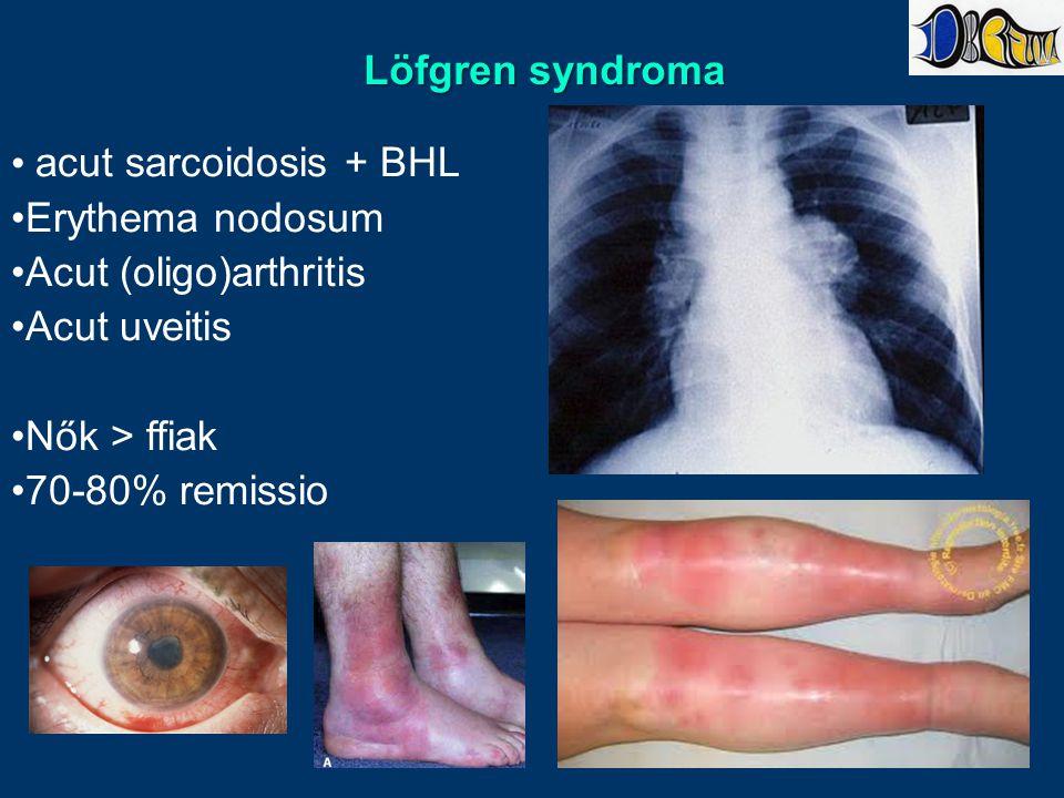 Löfgren syndroma acut sarcoidosis + BHL. Erythema nodosum. Acut (oligo)arthritis. Acut uveitis. Nők > ffiak.