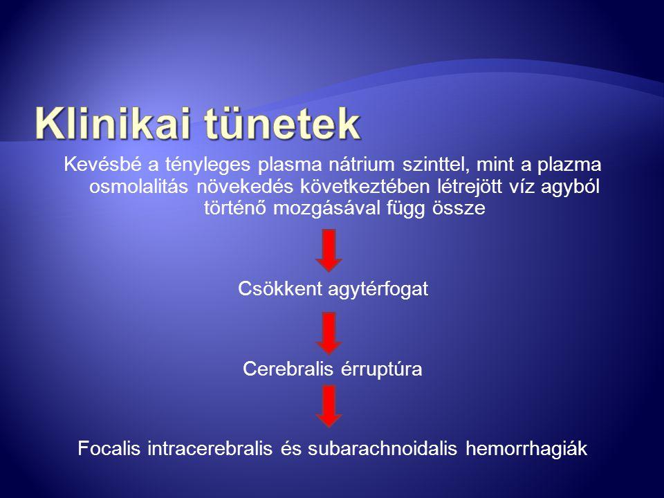 Focalis intracerebralis és subarachnoidalis hemorrhagiák