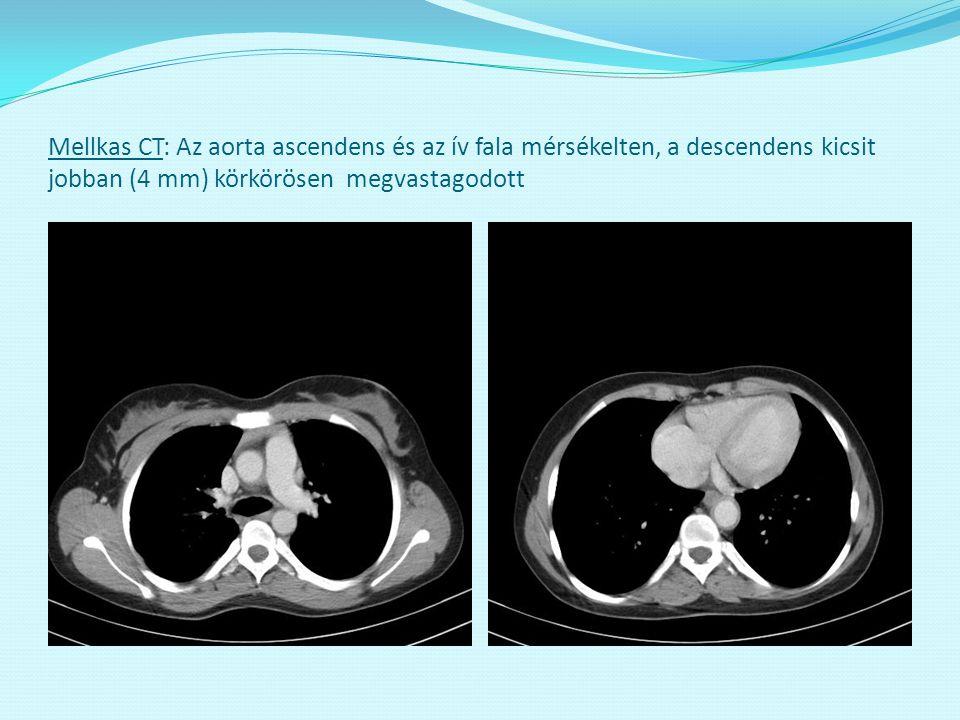 Mellkas CT: Az aorta ascendens és az ív fala mérsékelten, a descendens kicsit jobban (4 mm) körkörösen megvastagodott