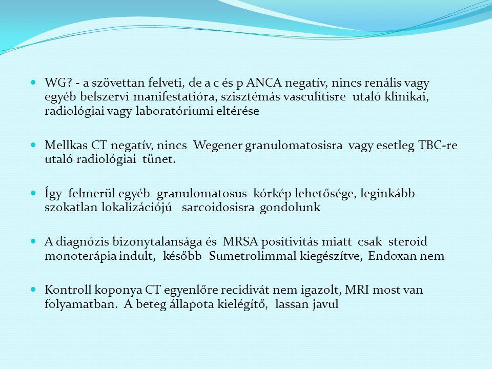 WG - a szövettan felveti, de a c és p ANCA negatív, nincs renális vagy egyéb belszervi manifestatióra, szisztémás vasculitisre utaló klinikai, radiológiai vagy laboratóriumi eltérése