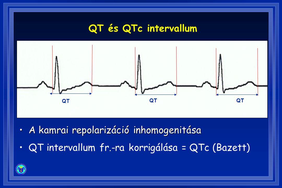 A kamrai repolarizáció inhomogenitása
