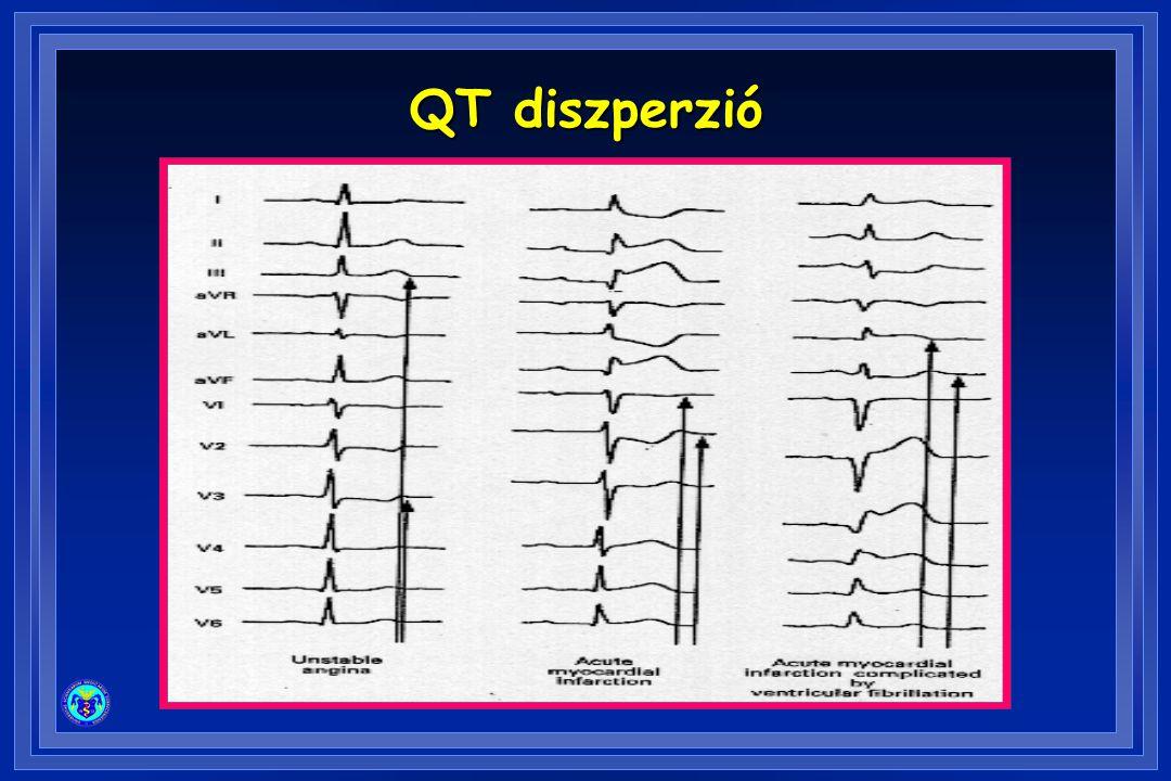 QT diszperzió