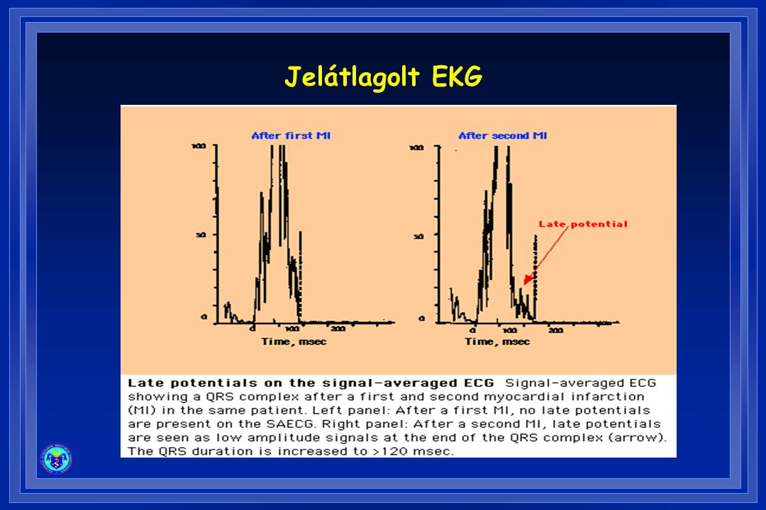 Jelátlagolt EKG