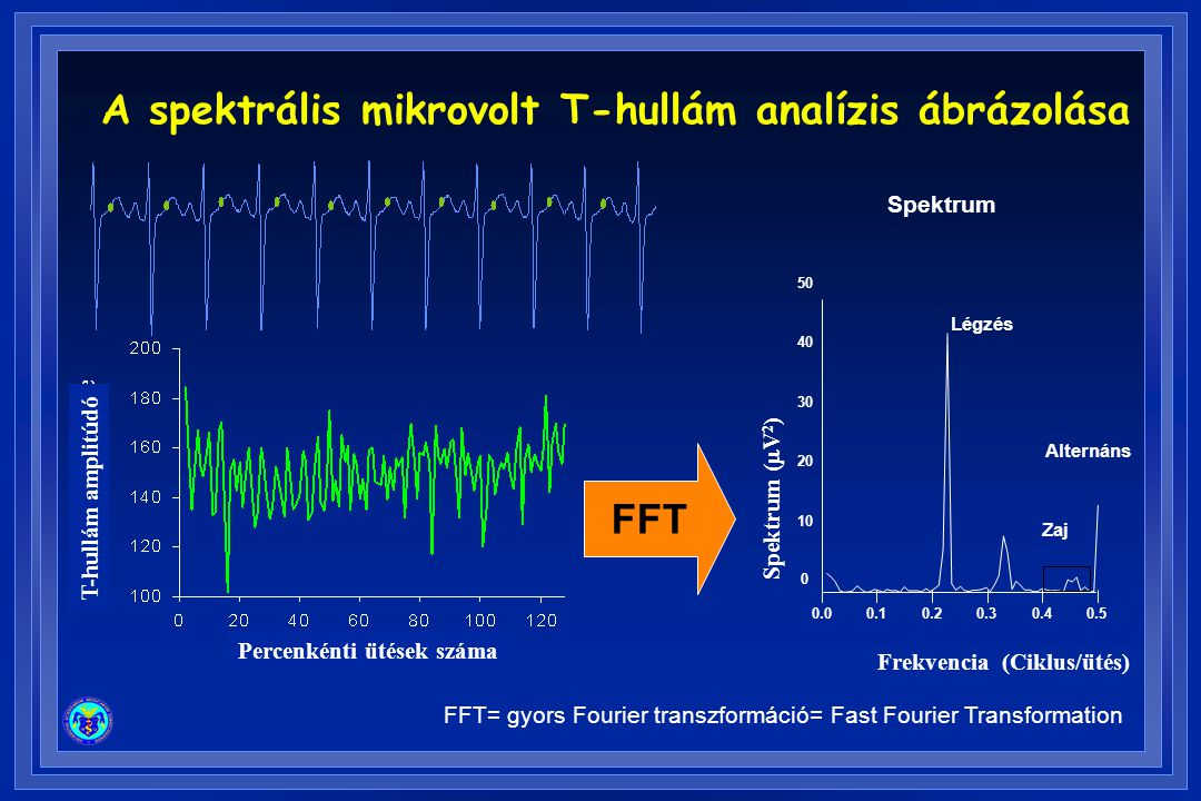A spektrális mikrovolt T-hullám analízis ábrázolása