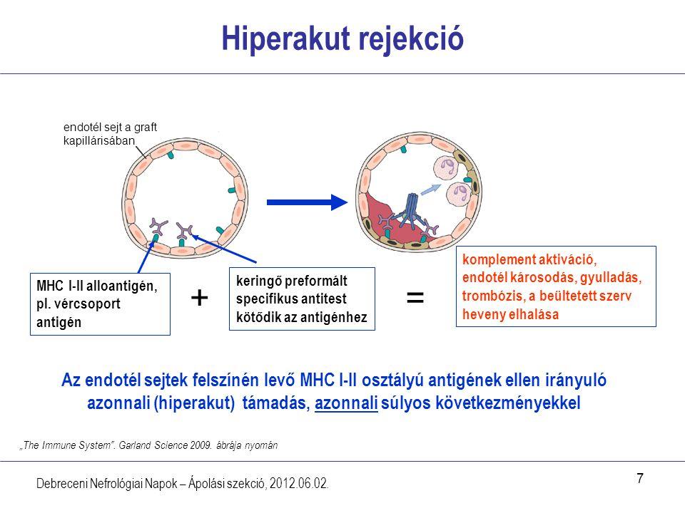 Hiperakut rejekció endotél sejt a graft kapillárisában.