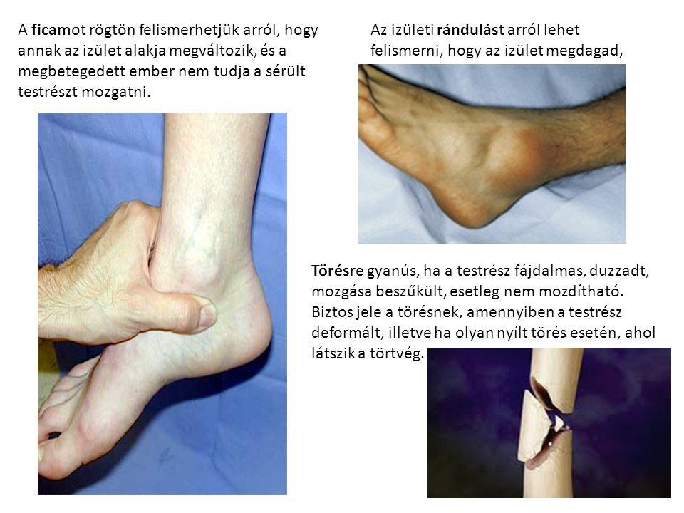 A ficamot rögtön felismerhetjük arról, hogy annak az izület alakja megváltozik, és a megbetegedett ember nem tudja a sérült testrészt mozgatni.