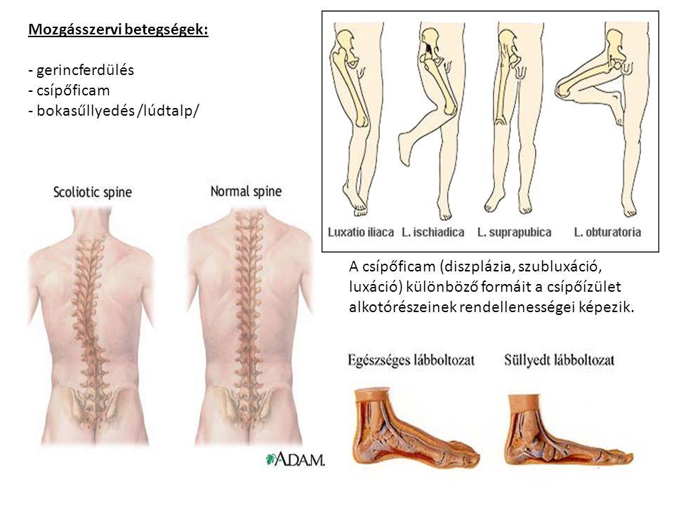 Mozgásszervi betegségek: