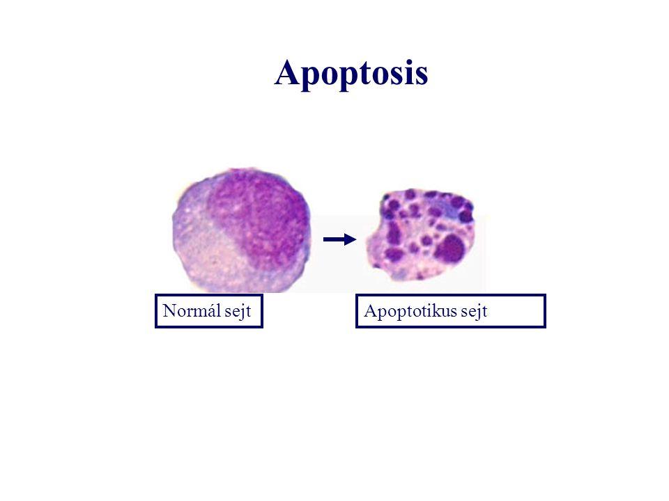 Apoptosis Normál sejt Apoptotikus sejt