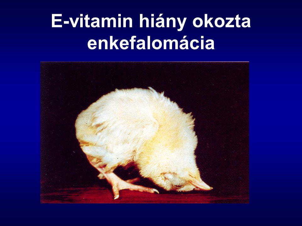 E-vitamin hiány okozta enkefalomácia