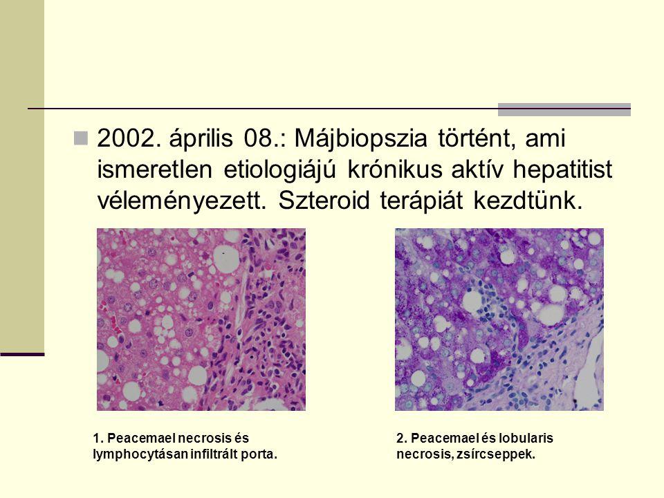 2002. április 08.: Májbiopszia történt, ami ismeretlen etiologiájú krónikus aktív hepatitist véleményezett. Szteroid terápiát kezdtünk.