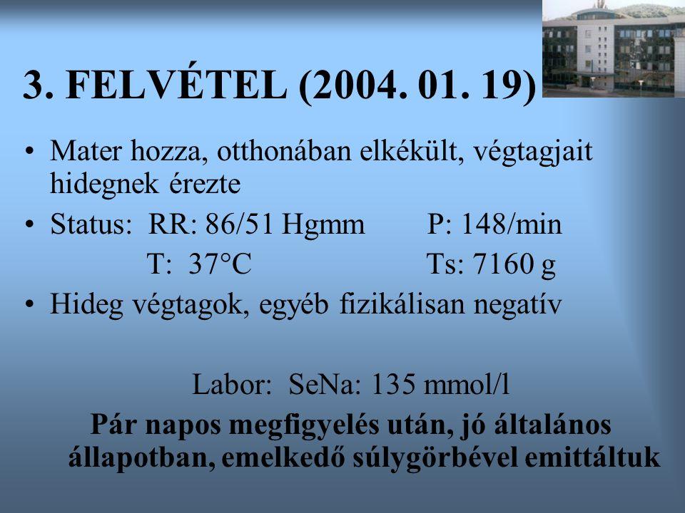 3. FELVÉTEL (2004. 01. 19) Mater hozza, otthonában elkékült, végtagjait hidegnek érezte. Status: RR: 86/51 Hgmm P: 148/min.