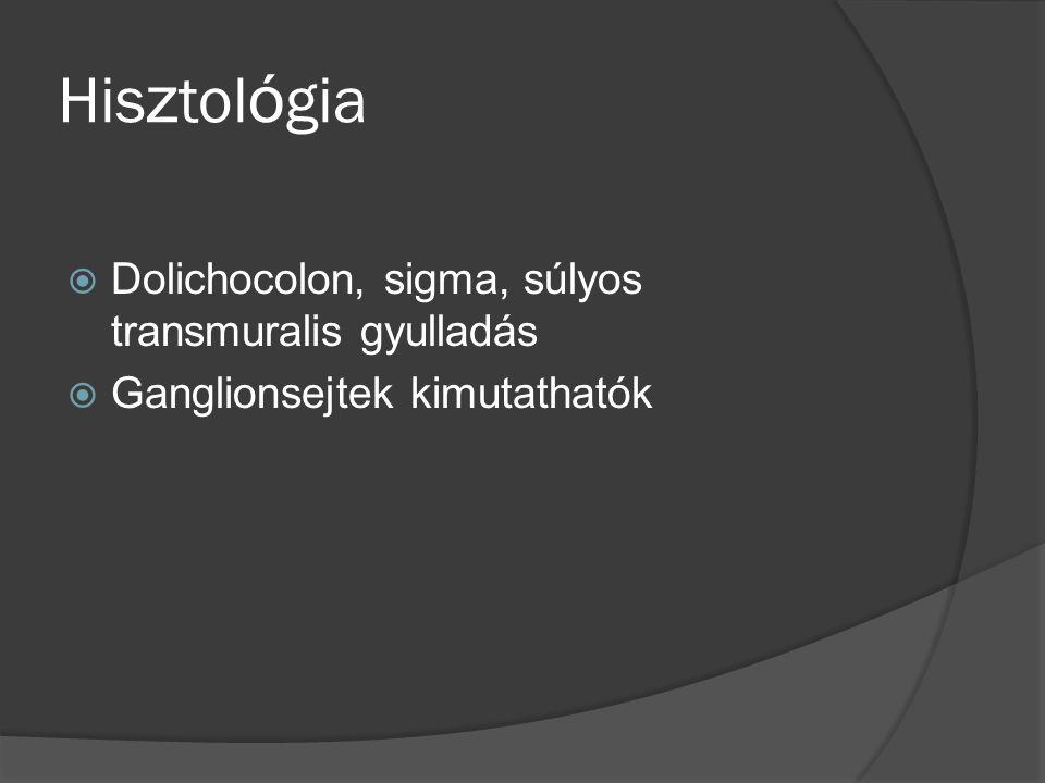 Hisztológia Dolichocolon, sigma, súlyos transmuralis gyulladás