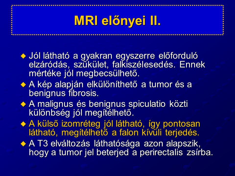 MRI előnyei II. Jól látható a gyakran egyszerre előforduló elzáródás, szűkület, falkiszélesedés. Ennek mértéke jól megbecsülhető.