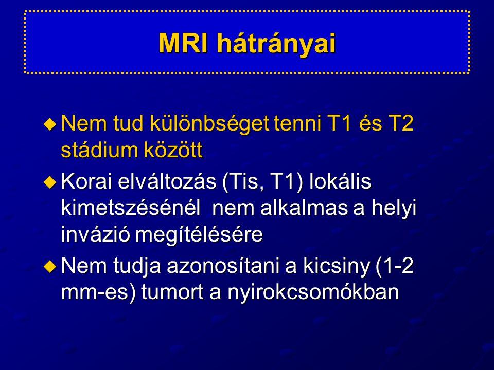 MRI hátrányai Nem tud különbséget tenni T1 és T2 stádium között