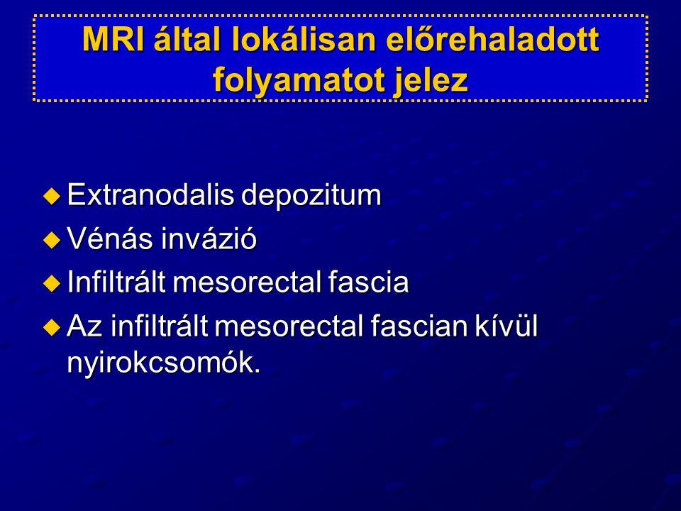 MRI által lokálisan előrehaladott folyamatot jelez