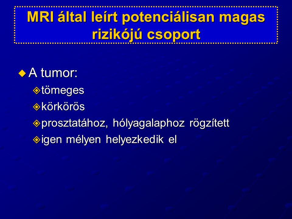 MRI által leírt potenciálisan magas rizikójú csoport