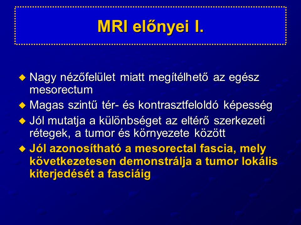 MRI előnyei I. Nagy nézőfelület miatt megítélhető az egész mesorectum