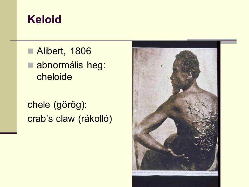 Keloid Alibert, 1806 abnormális heg: cheloide chele (görög):