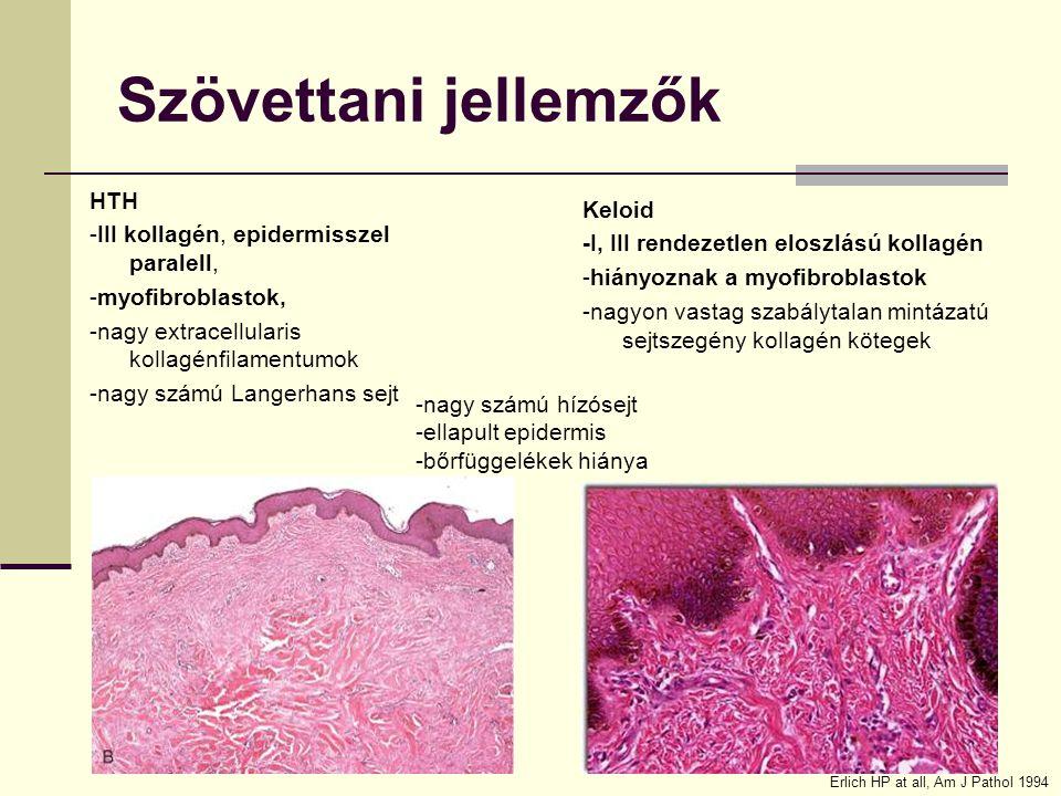 Szövettani jellemzők HTH Keloid -III kollagén, epidermisszel paralell,