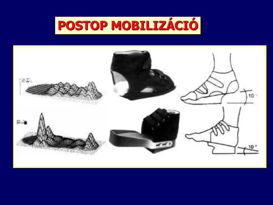 POSTOP MOBILIZÁCIÓ