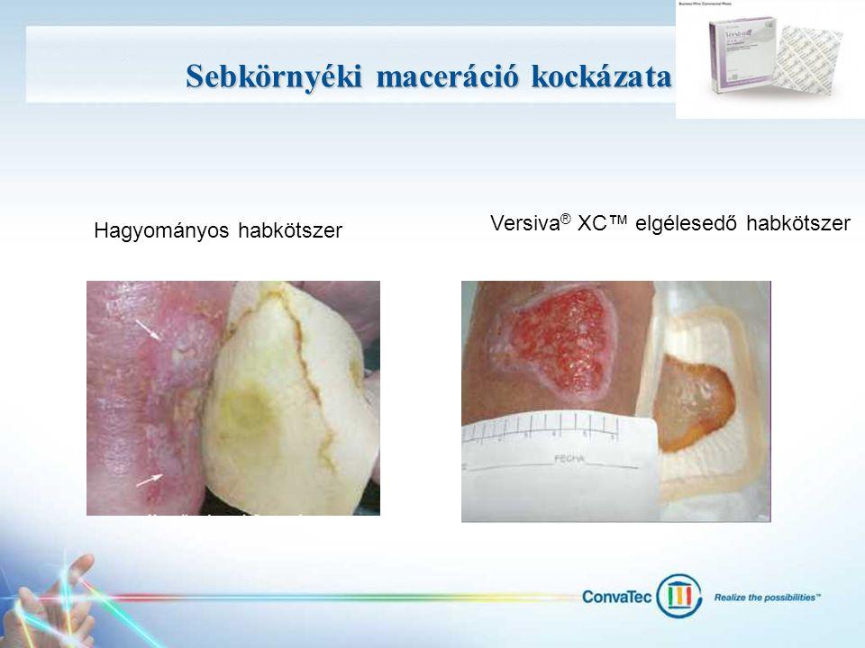 Sebkörnyéki maceráció kockázata