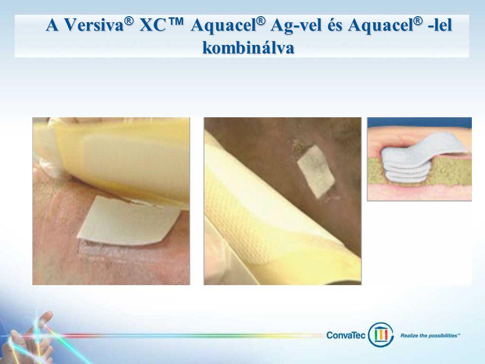 A Versiva® XC™ Aquacel® Ag-vel és Aquacel® -lel kombinálva