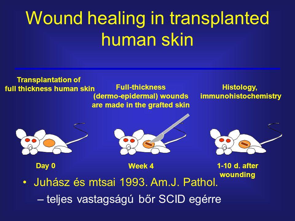 Wound healing in transplanted human skin