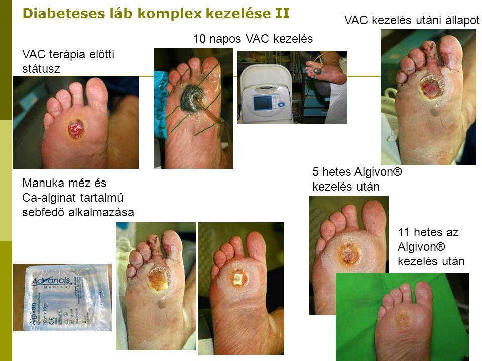 Diabeteses láb komplex kezelése II