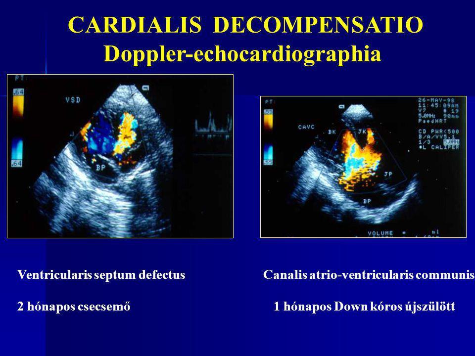 CARDIALIS DECOMPENSATIO Doppler-echocardiographia