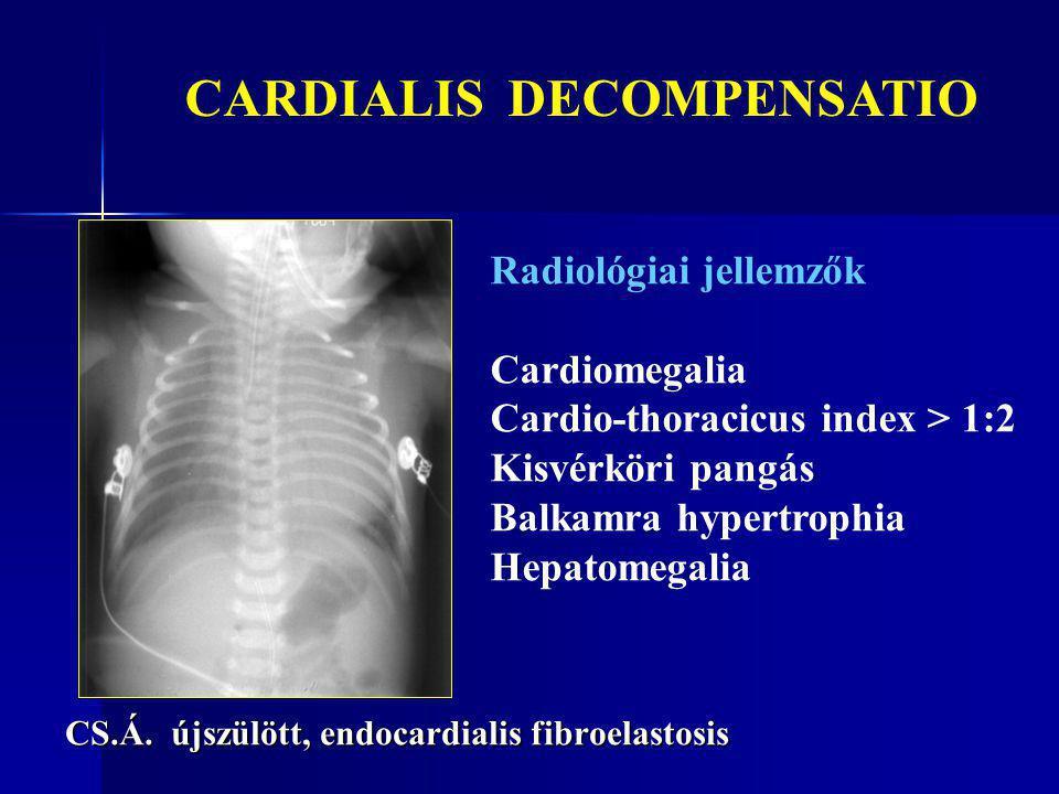 CS.Á. újszülött, endocardialis fibroelastosis