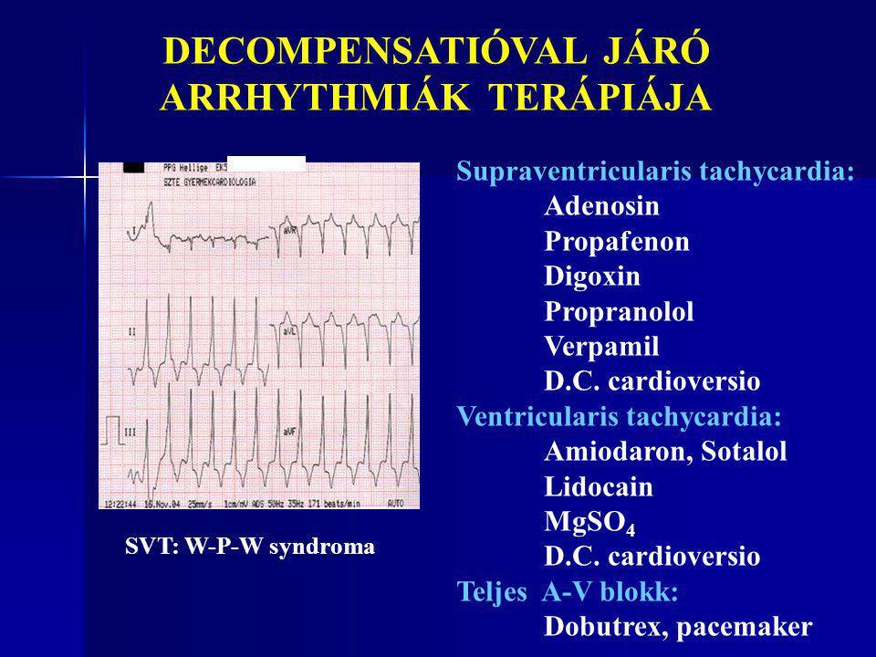 DECOMPENSATIÓVAL JÁRÓ ARRHYTHMIÁK TERÁPIÁJA