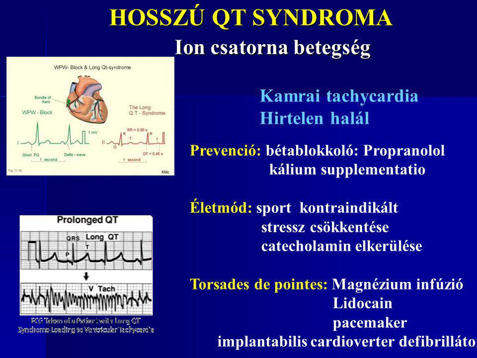 HOSSZÚ QT SYNDROMA Ion csatorna betegség