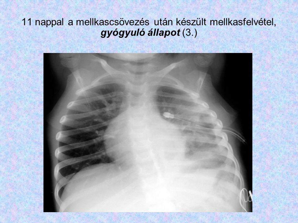 11 nappal a mellkascsövezés után készült mellkasfelvétel, gyógyuló állapot (3.)