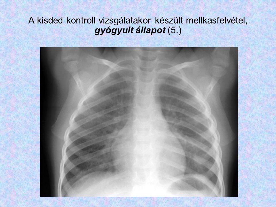A kisded kontroll vizsgálatakor készült mellkasfelvétel, gyógyult állapot (5.)