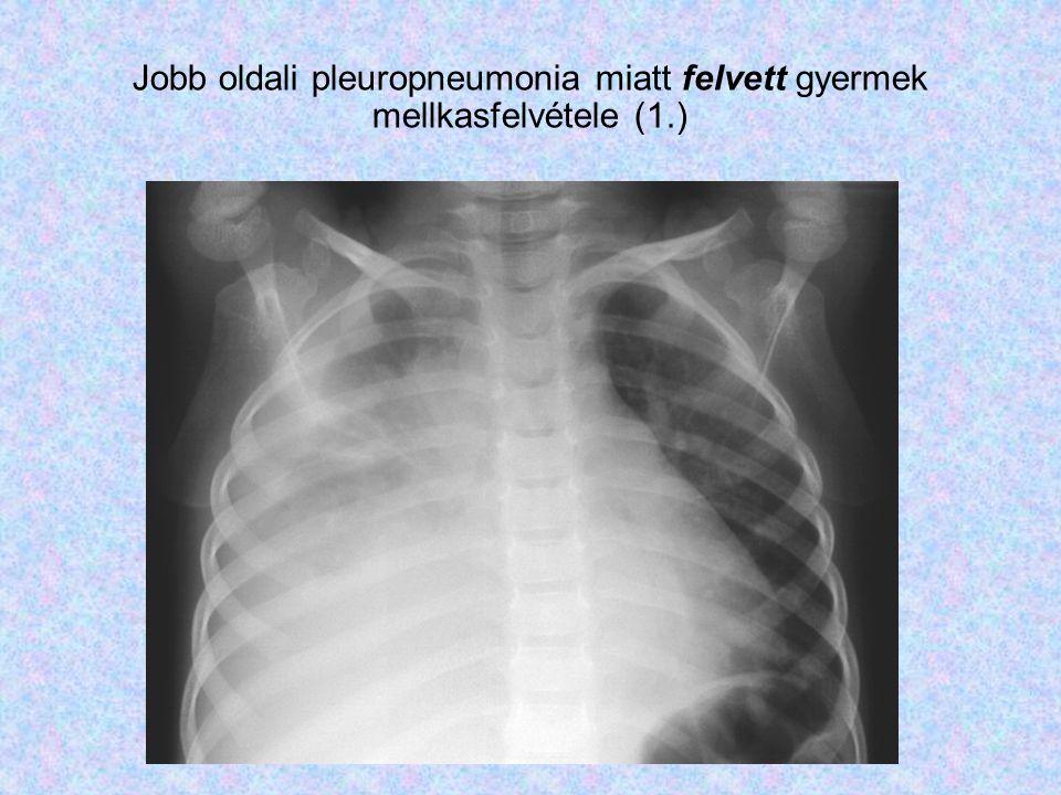 Jobb oldali pleuropneumonia miatt felvett gyermek mellkasfelvétele (1