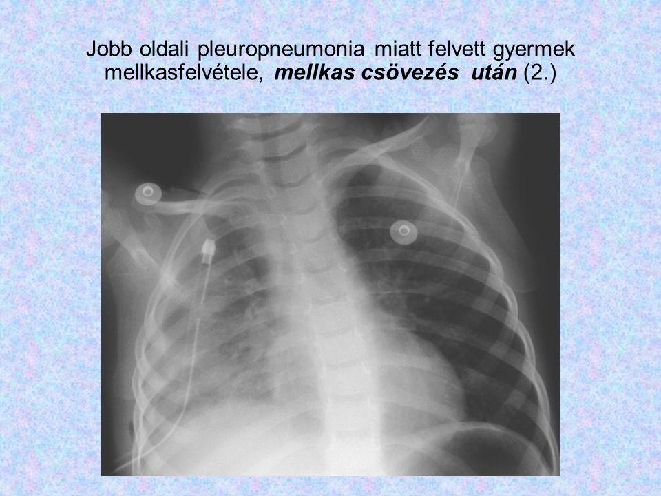 Jobb oldali pleuropneumonia miatt felvett gyermek mellkasfelvétele, mellkas csövezés után (2.)