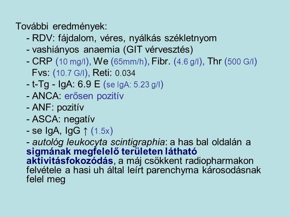 További eredmények: - RDV: fájdalom, véres, nyálkás székletnyom. - vashiányos anaemia (GIT vérvesztés)